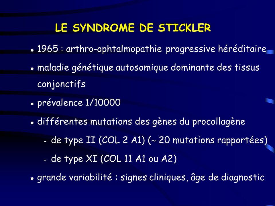 LE SYNDROME DE STICKLER 1965 : arthro-ophtalmopathie progressive héréditaire maladie génétique autosomique dominante des tissus conjonctifs prévalence