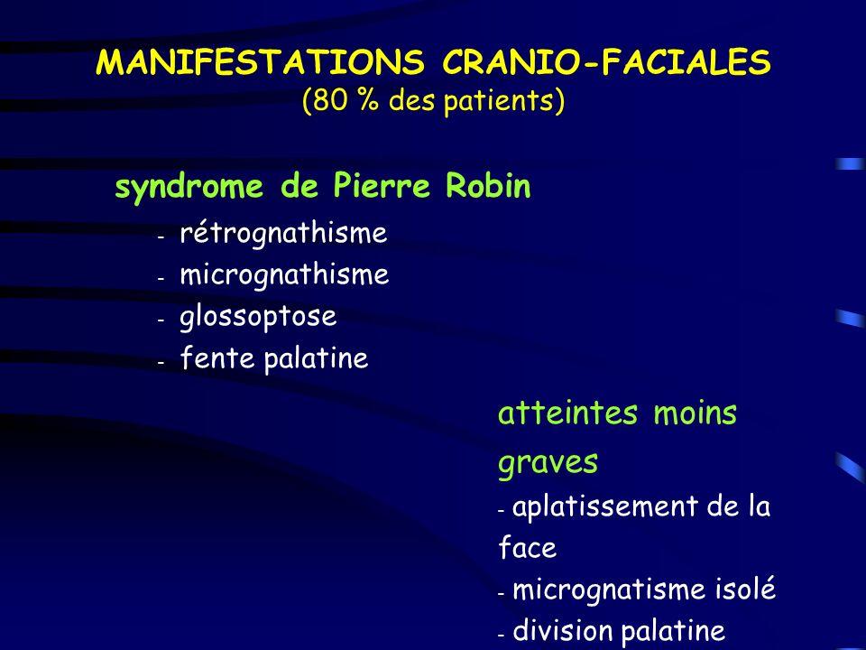 MANIFESTATIONS CRANIO-FACIALES (80 % des patients) syndrome de Pierre Robin – rétrognathisme – micrognathisme – glossoptose – fente palatine atteintes