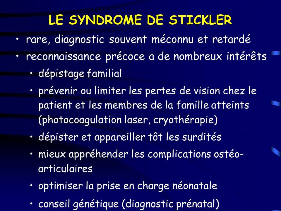 LE SYNDROME DE STICKLER rare, diagnostic souvent méconnu et retardé reconnaissance précoce a de nombreux intérêts dépistage familial prévenir ou limit