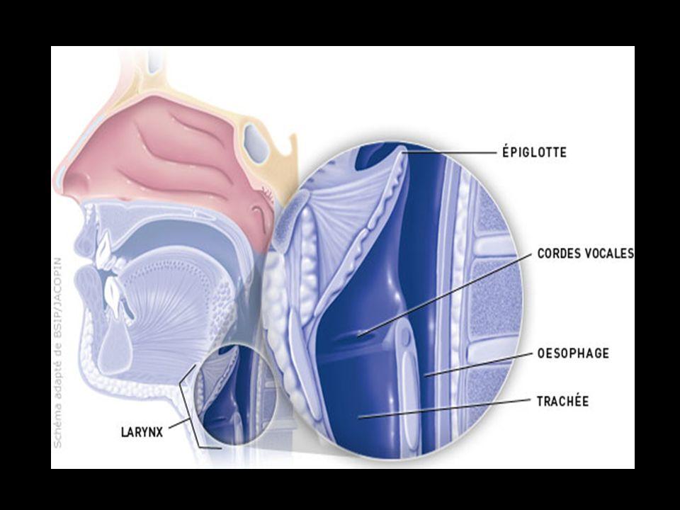 Clinique Manifestations les plus fréquemment rapportées : enrouement chronique brûlures et paresthésies pharyngées toux chronique 3 symptômes fréquents de consultation chez le médecin généraliste et lORL progressive dans la pop° gle