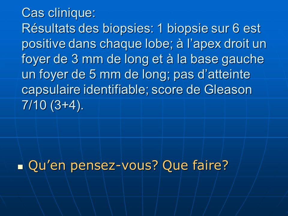 Cas clinique: Résultats des biopsies: 1 biopsie sur 6 est positive dans chaque lobe; à lapex droit un foyer de 3 mm de long et à la base gauche un foy