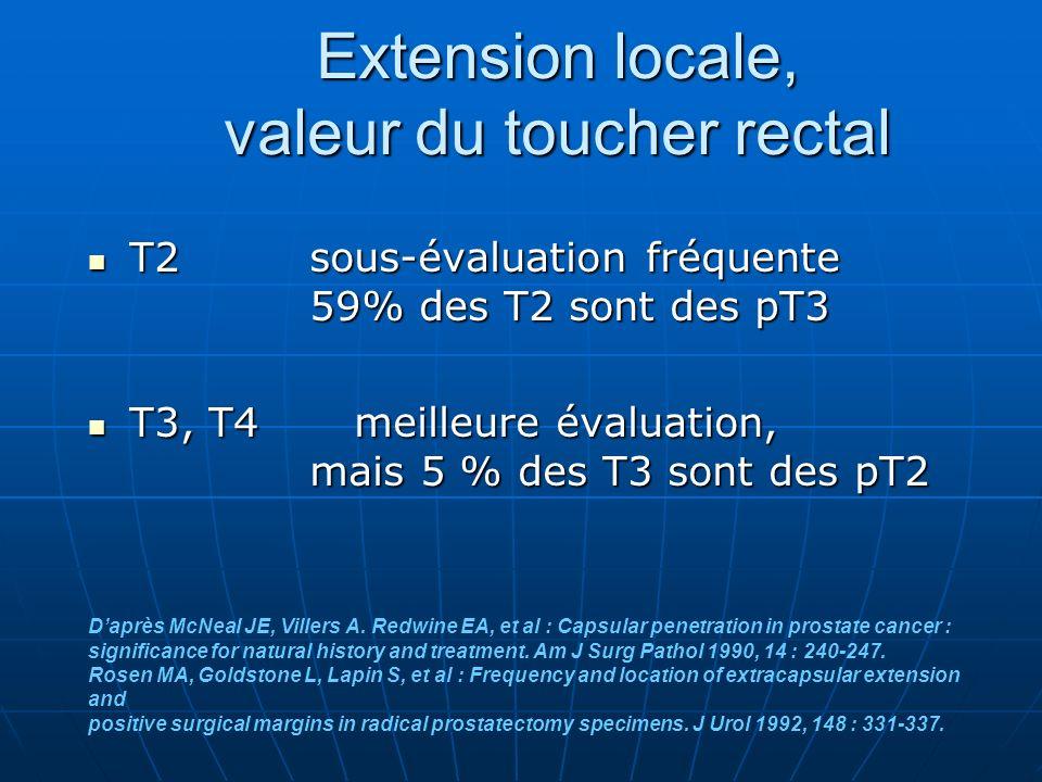 Extension locale, valeur du toucher rectal T2 sous-évaluation fréquente 59% des T2 sont des pT3 T2 sous-évaluation fréquente 59% des T2 sont des pT3 T3, T4 meilleure évaluation, mais 5 % des T3 sont des pT2 T3, T4 meilleure évaluation, mais 5 % des T3 sont des pT2 Daprès McNeal JE, Villers A.