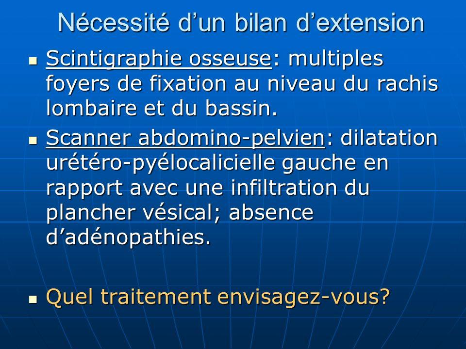 26 % 57 % 76 % 81 % pT3b pT3aMg+ pT3aMg- pT1-T2 PT : facteurs pronostiques stade pathologique 0 12 24 36 48 60 72 84 mois 100%9080706050403020100 absence de récidive biologique Daprès Catalona WJ.