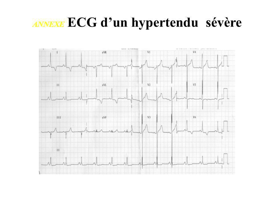 ANNEXE ECG dun hypertendu sévère