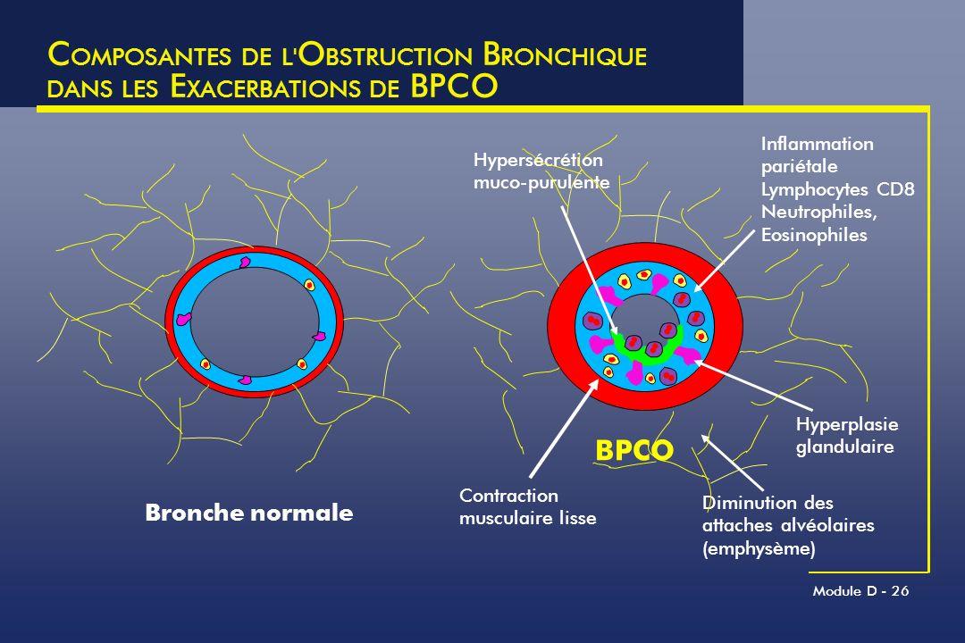 Module D - 26 C OMPOSANTES DE L' O BSTRUCTION B RONCHIQUE DANS LES E XACERBATIONS DE BPCO Bronche normale Hypersécrétion muco-purulente Contraction mu