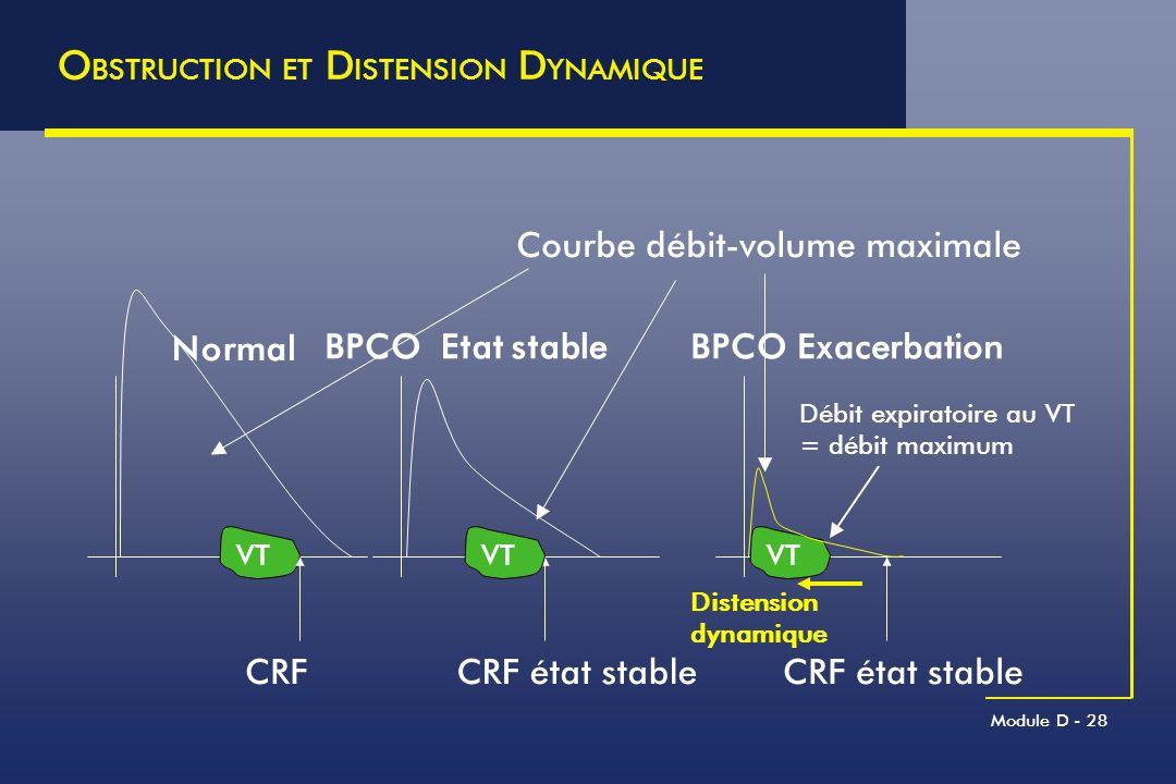 Module D - 28 O BSTRUCTION ET D ISTENSION D YNAMIQUE Exacerbation Etat stable Débit expiratoire au VT = débit maximum Courbe débit-volume maximale VT