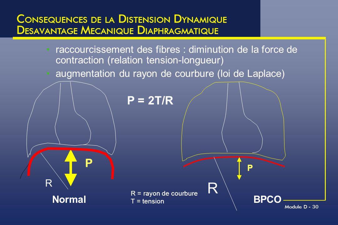 Module D - 30 C ONSEQUENCES DE LA D ISTENSION D YNAMIQUE D ESAVANTAGE M ECANIQUE D IAPHRAGMATIQUE raccourcissement des fibres : diminution de la force