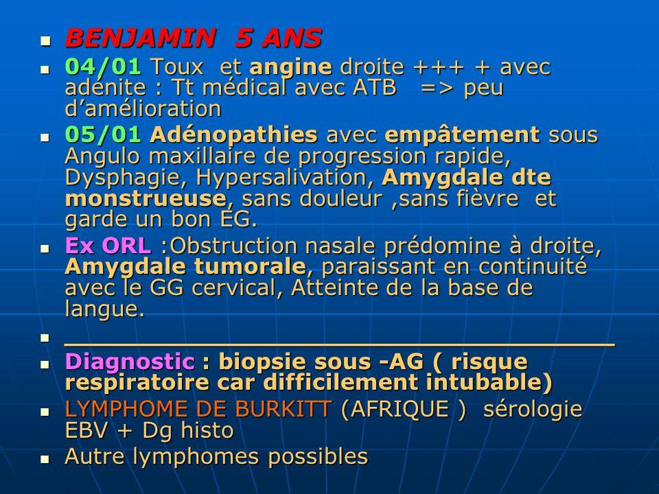 BENJAMIN 5 ANS BENJAMIN 5 ANS 04/01 Toux et angine droite +++ + avec adénite : Tt médical avec ATB => peu damélioration 04/01 Toux et angine droite ++