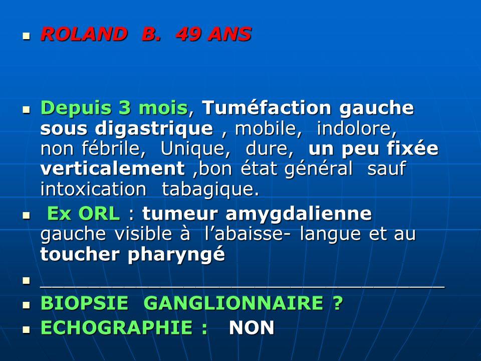 ROLAND B. 49 ANS ROLAND B. 49 ANS Depuis 3 mois, Tuméfaction gauche sous digastrique, mobile, indolore, non fébrile, Unique, dure, un peu fixée vertic