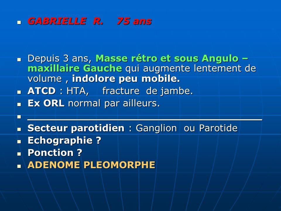 GABRIELLE R. 75 ans GABRIELLE R. 75 ans Depuis 3 ans, Masse rétro et sous Angulo – maxillaire Gauche qui augmente lentement de volume, indolore peu mo