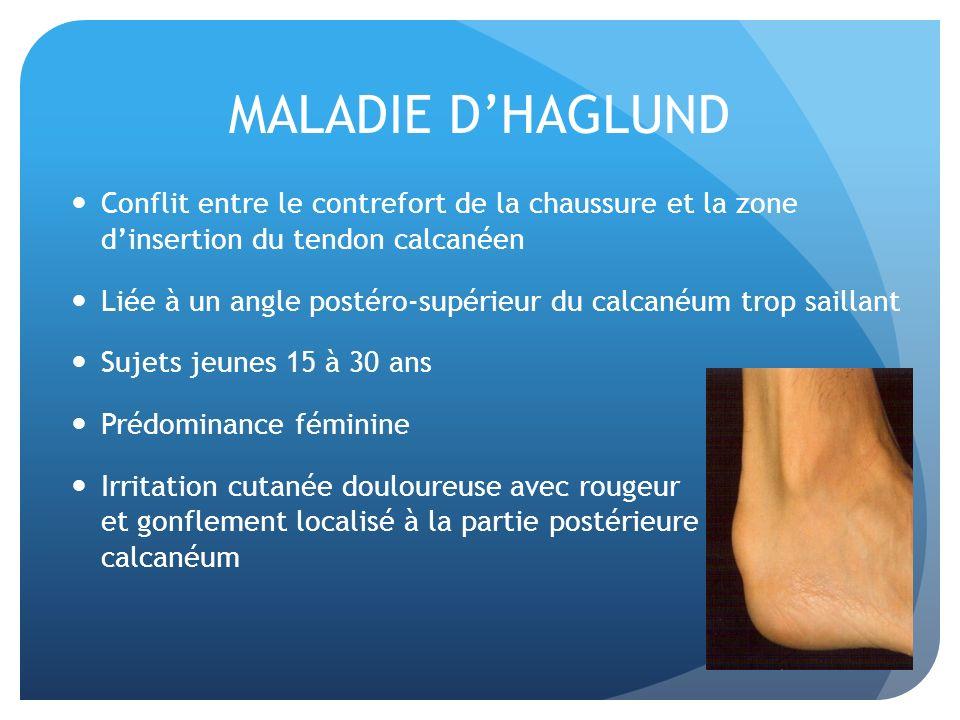 MALADIE DHAGLUND Conflit entre le contrefort de la chaussure et la zone dinsertion du tendon calcanéen Liée à un angle postéro-supérieur du calcanéum
