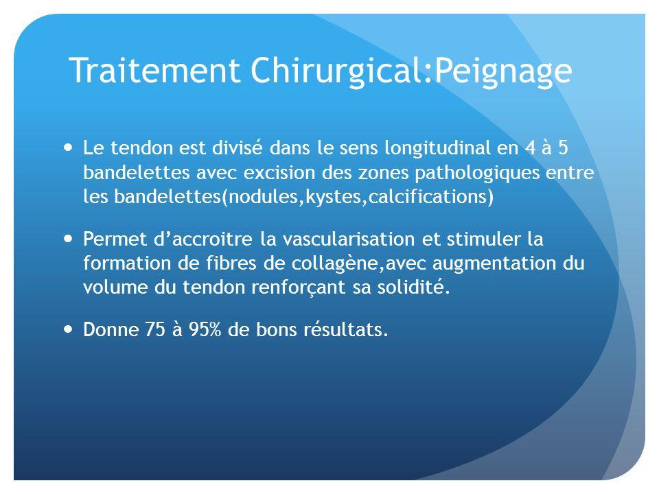 Traitement Chirurgical:Peignage Le tendon est divisé dans le sens longitudinal en 4 à 5 bandelettes avec excision des zones pathologiques entre les ba