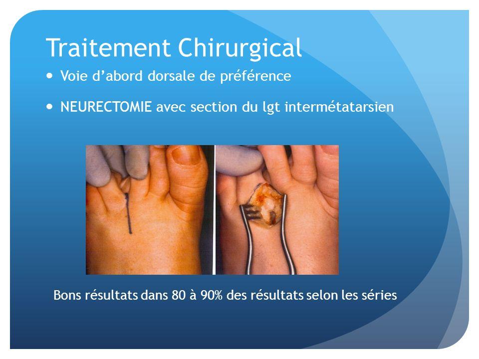 Traitement Chirurgical Voie dabord dorsale de préférence NEURECTOMIE avec section du lgt intermétatarsien Bons résultats dans 80 à 90% des résultats selon les séries