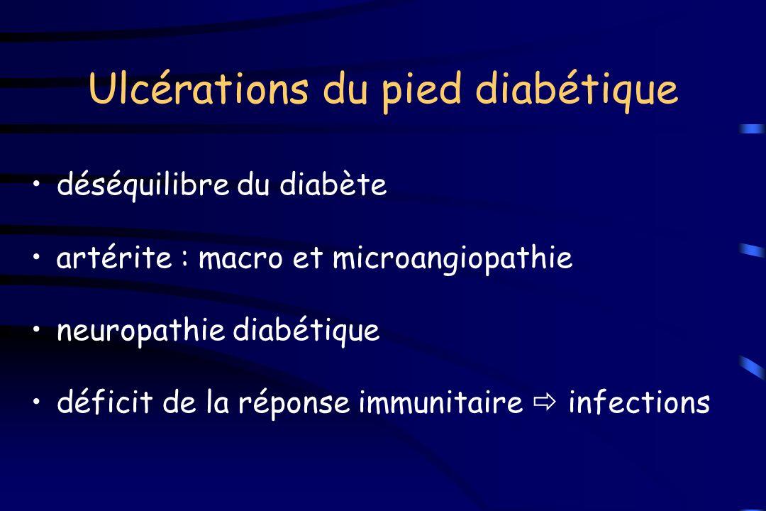 Ulcérations du pied diabétique déséquilibre du diabète artérite : macro et microangiopathie neuropathie diabétique déficit de la réponse immunitaire i