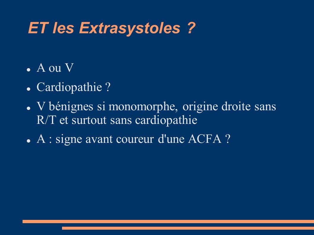 ET les Extrasystoles ? A ou V Cardiopathie ? V bénignes si monomorphe, origine droite sans R/T et surtout sans cardiopathie A : signe avant coureur d'