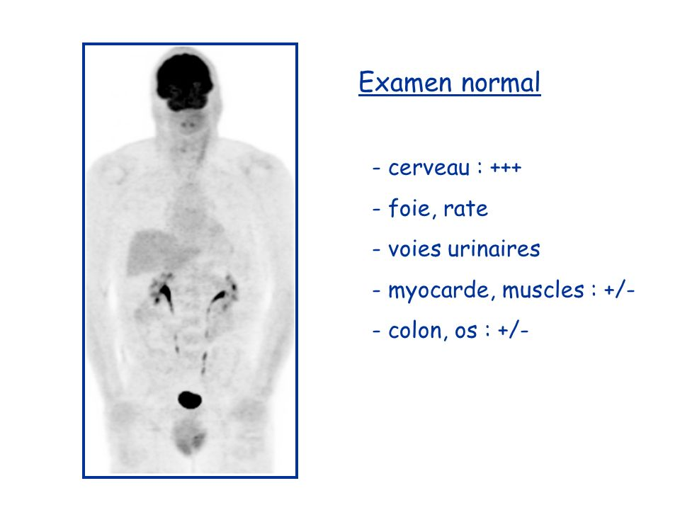 Examen normal - cerveau : +++ - foie, rate - voies urinaires - myocarde, muscles : +/- - colon, os : +/-