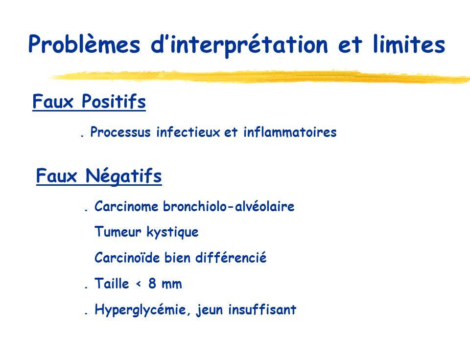 Problèmes dinterprétation et limites Faux Positifs. Processus infectieux et inflammatoires Faux Négatifs. Carcinome bronchiolo-alvéolaire Tumeur kysti