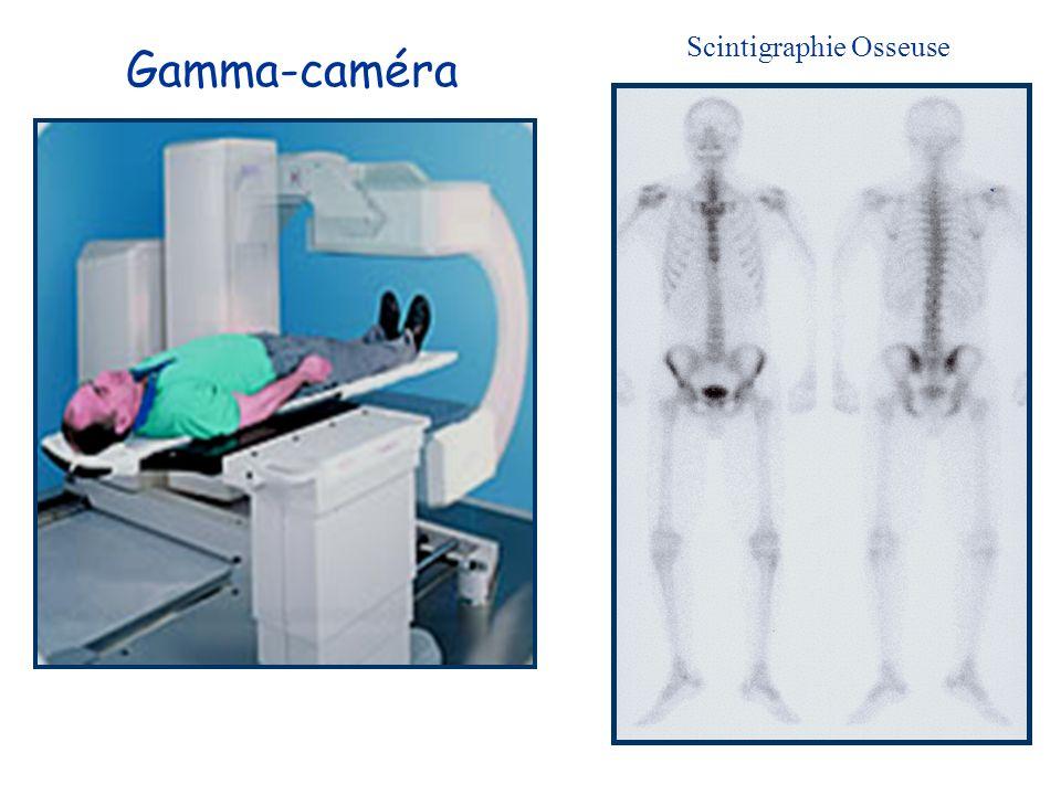 Scintigraphie Osseuse Gamma-caméra