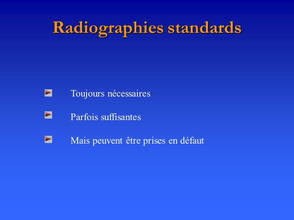 Radiographies standards Toujours nécessaires Parfois suffisantes Mais peuvent être prises en défaut