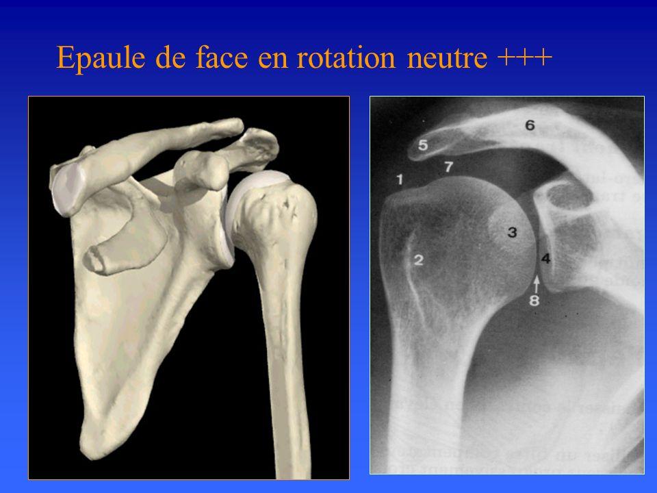 Epaule de face en rotation neutre +++ Cliché indispensable devant toute épaule rhumatologique ou traumatologique.