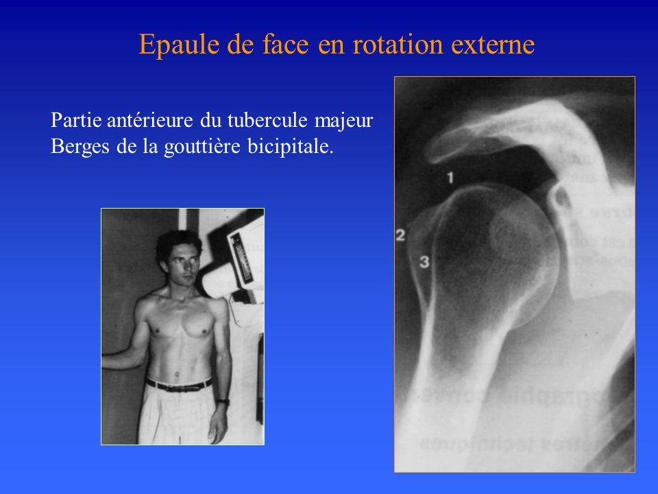 Partie antérieure du tubercule majeur Berges de la gouttière bicipitale. Epaule de face en rotation externe
