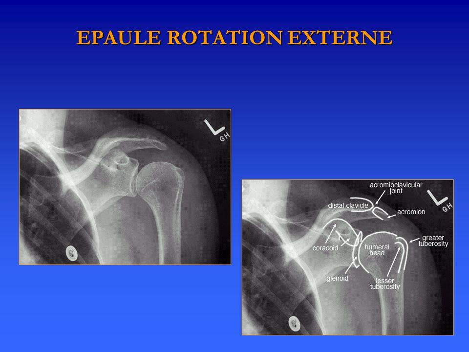 EPAULE ROTATION EXTERNE