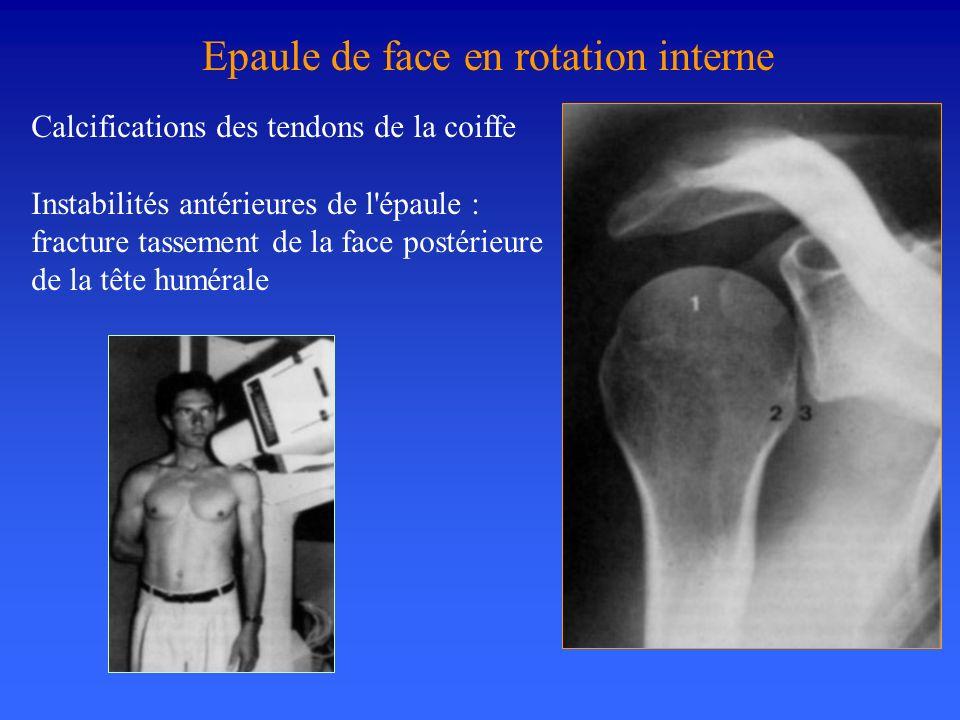 Calcifications des tendons de la coiffe Instabilités antérieures de l'épaule : fracture tassement de la face postérieure de la tête humérale Epaule de