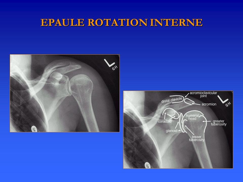 EPAULE ROTATION INTERNE