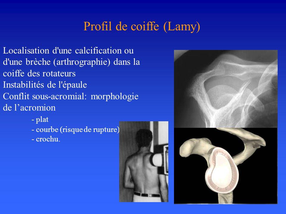 Profil de coiffe (Lamy) Localisation d'une calcification ou d'une brèche (arthrographie) dans la coiffe des rotateurs Instabilités de l'épaule Conflit