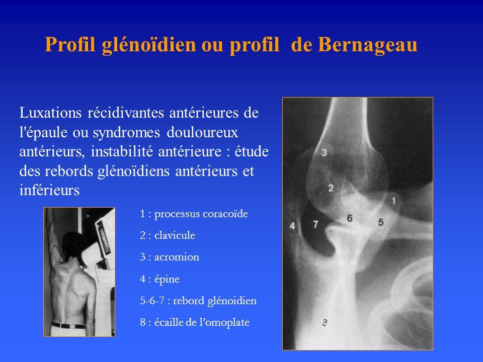 Profil glénoïdien ou profil de Bernageau Luxations récidivantes antérieures de l'épaule ou syndromes douloureux antérieurs, instabilité antérieure : é