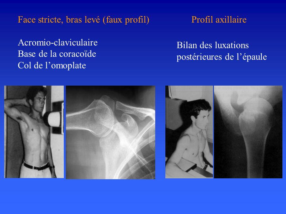 Face stricte, bras levé (faux profil) Acromio-claviculaire Base de la coracoïde Col de lomoplate Profil axillaire Bilan des luxations postérieures de
