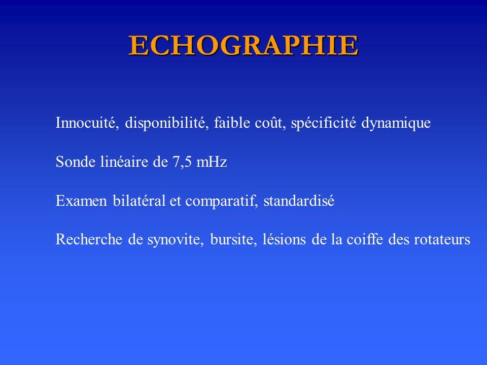 ECHOGRAPHIE Innocuité, disponibilité, faible coût, spécificité dynamique Sonde linéaire de 7,5 mHz Examen bilatéral et comparatif, standardisé Recherc