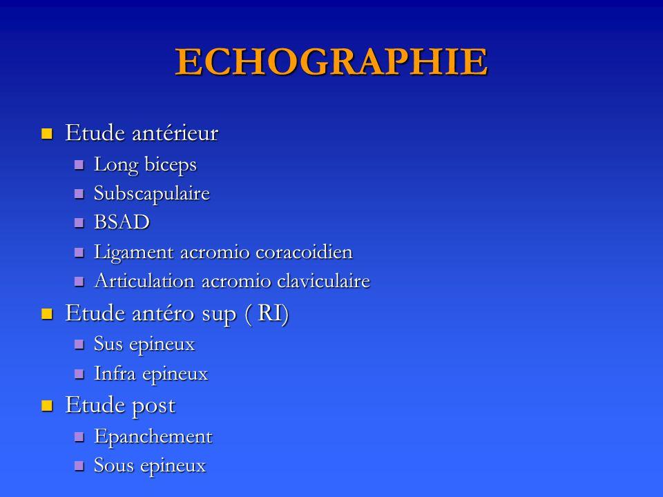 Etude antérieur Etude antérieur Long biceps Long biceps Subscapulaire Subscapulaire BSAD BSAD Ligament acromio coracoidien Ligament acromio coracoidie