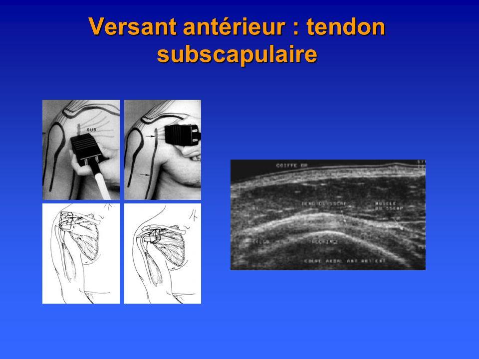 Versant antérieur : tendon subscapulaire