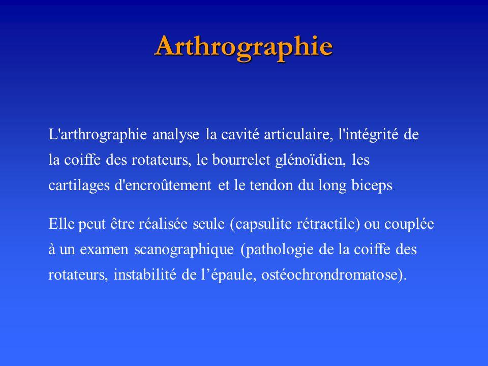 Arthrographie Elle peut être réalisée seule (capsulite rétractile) ou couplée à un examen scanographique (pathologie de la coiffe des rotateurs, insta