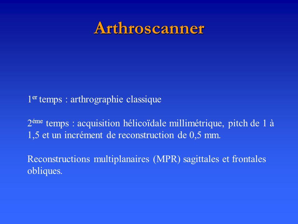 Arthroscanner 1 er temps : arthrographie classique 2 éme temps : acquisition hélicoïdale millimétrique, pitch de 1 à 1,5 et un incrément de reconstruc