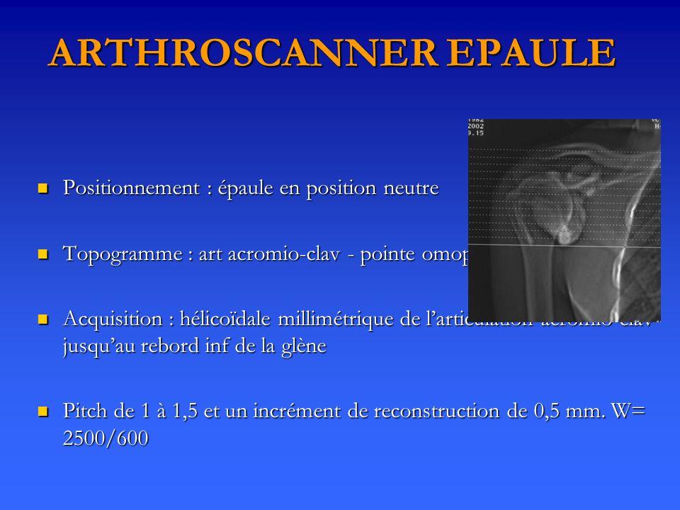 ARTHROSCANNER EPAULE Positionnement : épaule en position neutre Positionnement : épaule en position neutre Topogramme : art acromio-clav - pointe omop