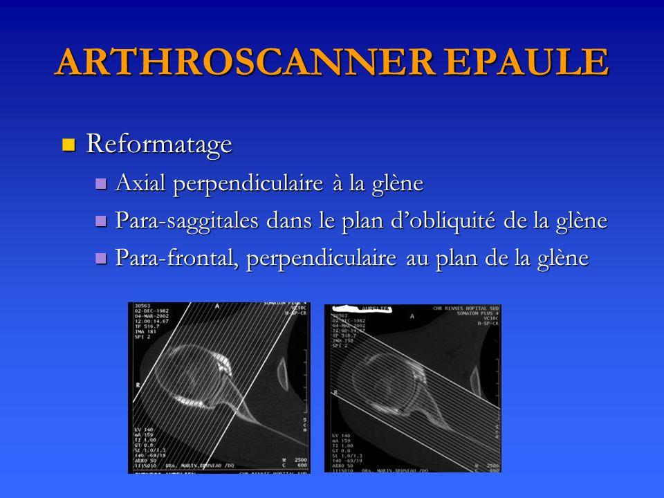 ARTHROSCANNER EPAULE Reformatage Reformatage Axial perpendiculaire à la glène Axial perpendiculaire à la glène Para-saggitales dans le plan dobliquité