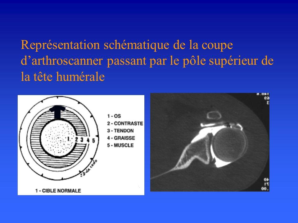 Représentation schématique de la coupe darthroscanner passant par le pôle supérieur de la tête humérale
