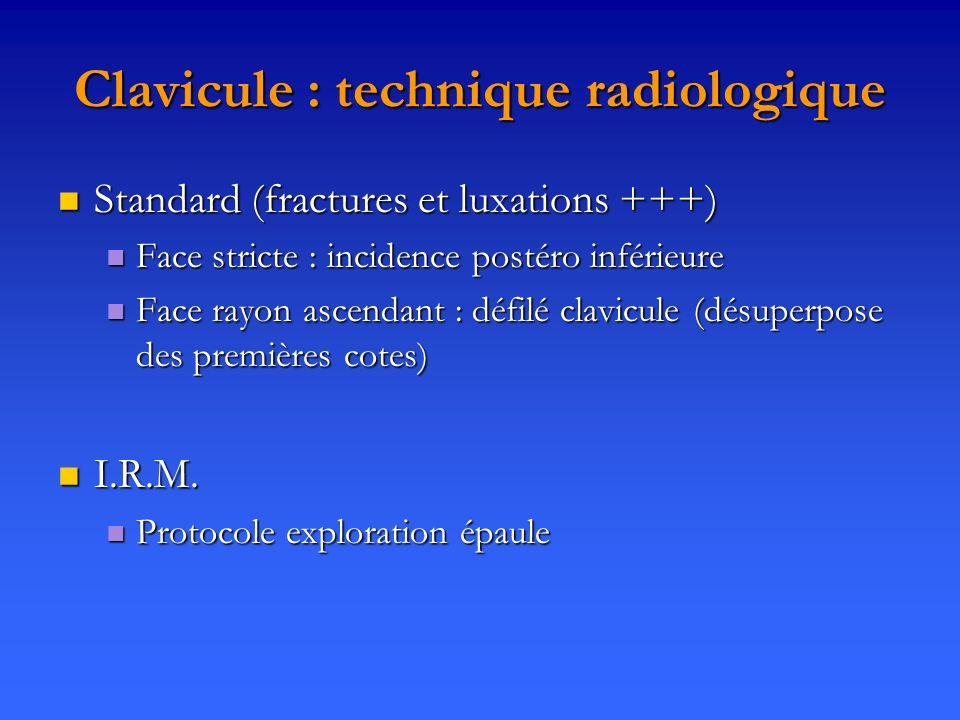 Clavicule : technique radiologique Standard (fractures et luxations +++) Standard (fractures et luxations +++) Face stricte : incidence postéro inféri