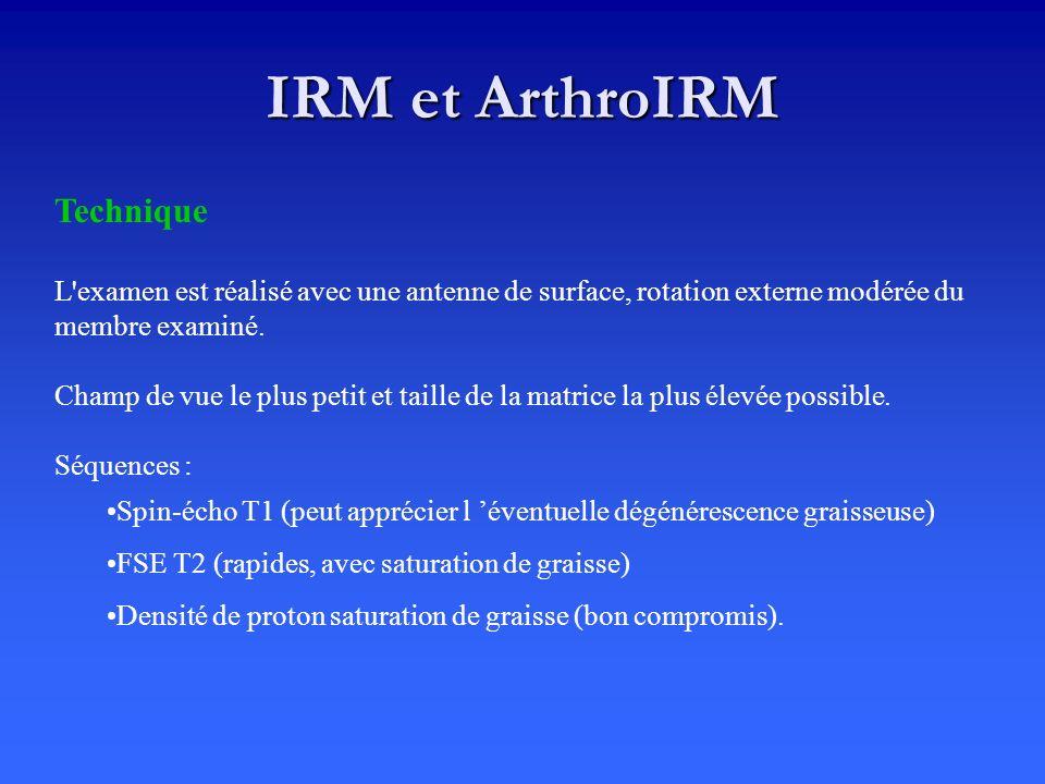 IRM et ArthroIRM Technique L'examen est réalisé avec une antenne de surface, rotation externe modérée du membre examiné. Champ de vue le plus petit et
