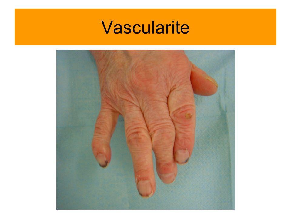 Vascularite