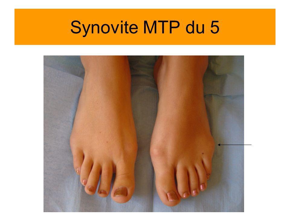 Synovite MTP du 5