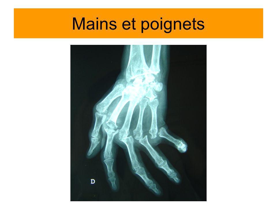 Mains et poignets