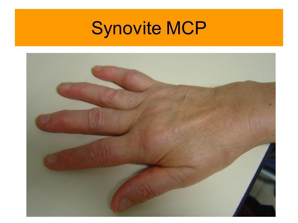 Synovite MCP