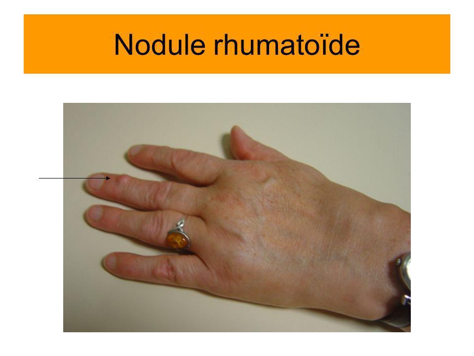 Nodule rhumatoïde
