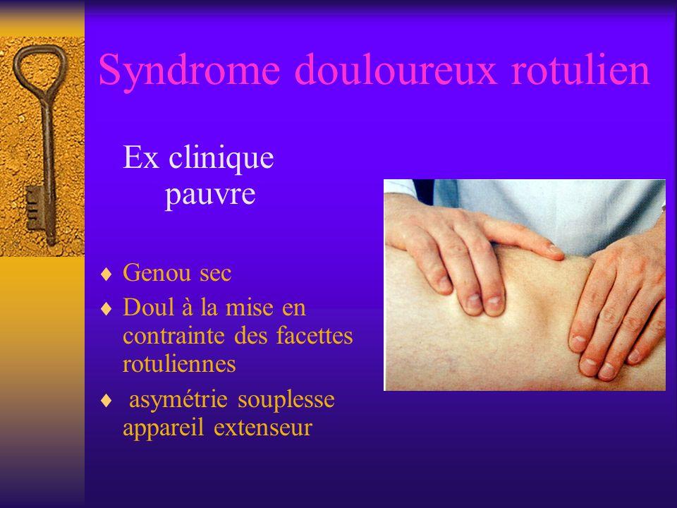 Syndrome douloureux rotulien Ex clinique pauvre Genou sec Doul à la mise en contrainte des facettes rotuliennes asymétrie souplesse appareil extenseur