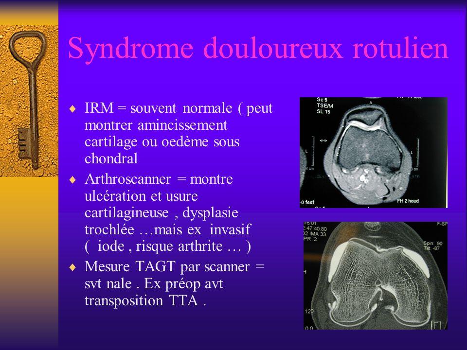 Syndrome douloureux rotulien IRM = souvent normale ( peut montrer amincissement cartilage ou oedème sous chondral Arthroscanner = montre ulcération et usure cartilagineuse, dysplasie trochlée …mais ex invasif ( iode, risque arthrite … ) Mesure TAGT par scanner = svt nale.