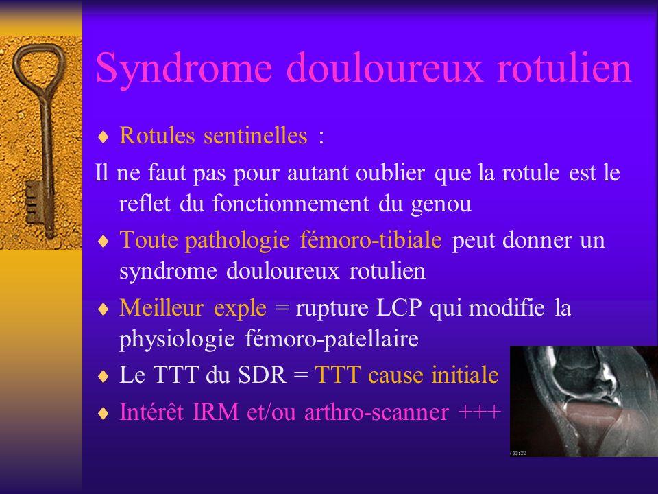 Syndrome douloureux rotulien Rotules sentinelles : Il ne faut pas pour autant oublier que la rotule est le reflet du fonctionnement du genou Toute pathologie fémoro-tibiale peut donner un syndrome douloureux rotulien Meilleur exple = rupture LCP qui modifie la physiologie fémoro-patellaire Le TTT du SDR = TTT cause initiale Intérêt IRM et/ou arthro-scanner +++