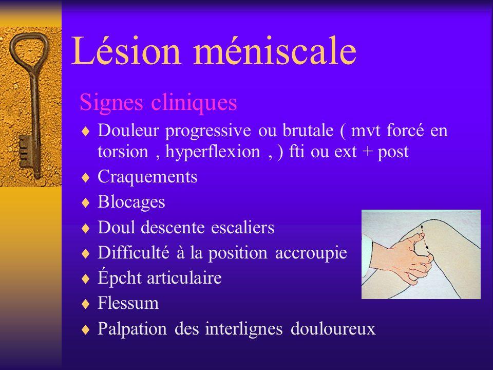 Lésion méniscale Signes cliniques Douleur progressive ou brutale ( mvt forcé en torsion, hyperflexion, ) fti ou ext + post Craquements Blocages Doul d